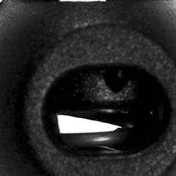 Kordelstopper 1-loch KST 15mm rund, 4028752448662